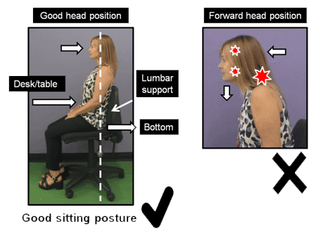 Examples of good and bad head posture