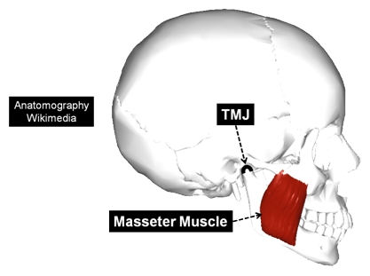 The Temporomandibular Joint (TMJ) and Masseter Muscle
